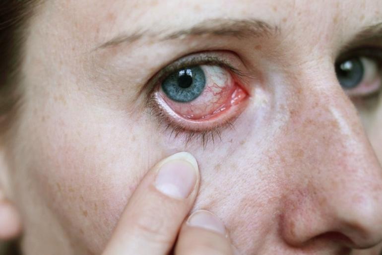 В домашних условиях лечить покраснение глаза 709