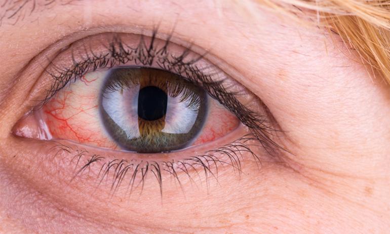 Болезни глаз Симптомы и лечение