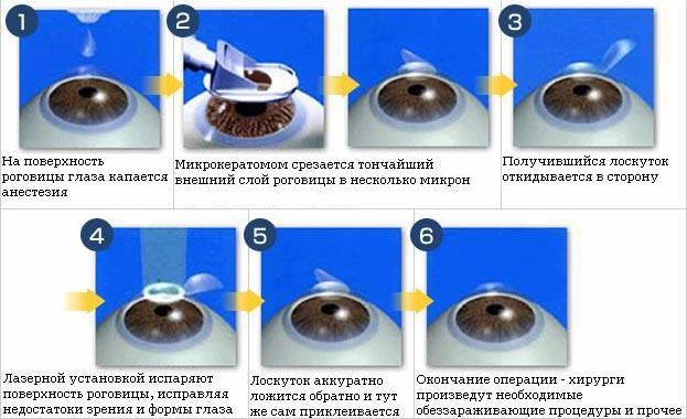 Восстановление зрение метод жданова