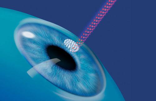 Можно ли делать лазерную коррекцию зрения нерожавшим или беременным?
