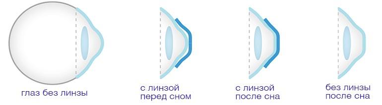 Ортокератологические контактные линзы цена